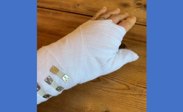 手の親指関節の固定が必要な時の包帯の巻き方